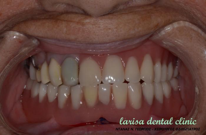 Επένθετη οδοντοστοιχία σε 2 εμφυτεύματα με συνδέσμους locator